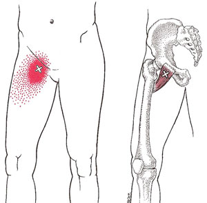 Inferior Pubic Ramus furthermore The Diaphragm Acts As A Border Crossing For Major Blood Vessels together with Hip And Buttock Pain moreover Kidney Pole Diagram likewise 284712007669234864. on left side pain location