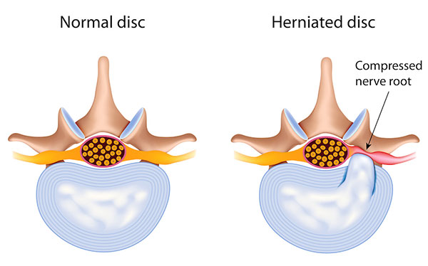 spinal-disc-herniation-prolapsed-sliped.jpg