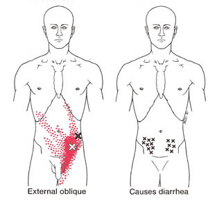 Drysdale Osteopathy, Abdominal Pain, IBS, Irritable Bowel Syndrome, Trigger Points