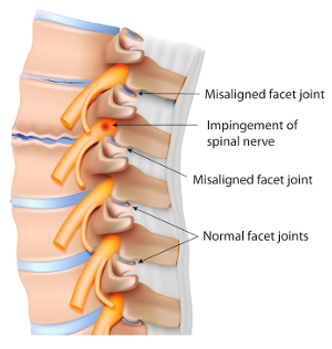Facet-Joint-Syndrome Neck Pain