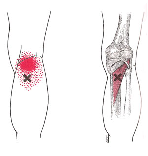 Drysdale Osteopathy, Knee Pain, Biomechanics, Trigger Points, Orthotics